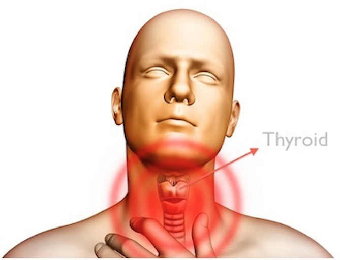 Hypothyroidism and Nutrition – What's the Connection?