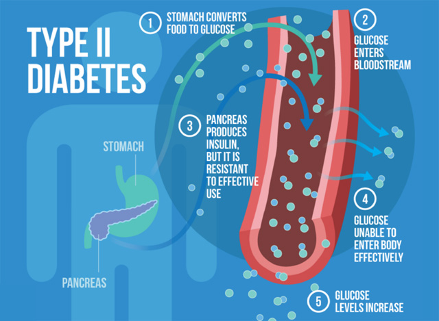 Nutrition: The Secret To Preventing And Reversing Type 2 Diabetes